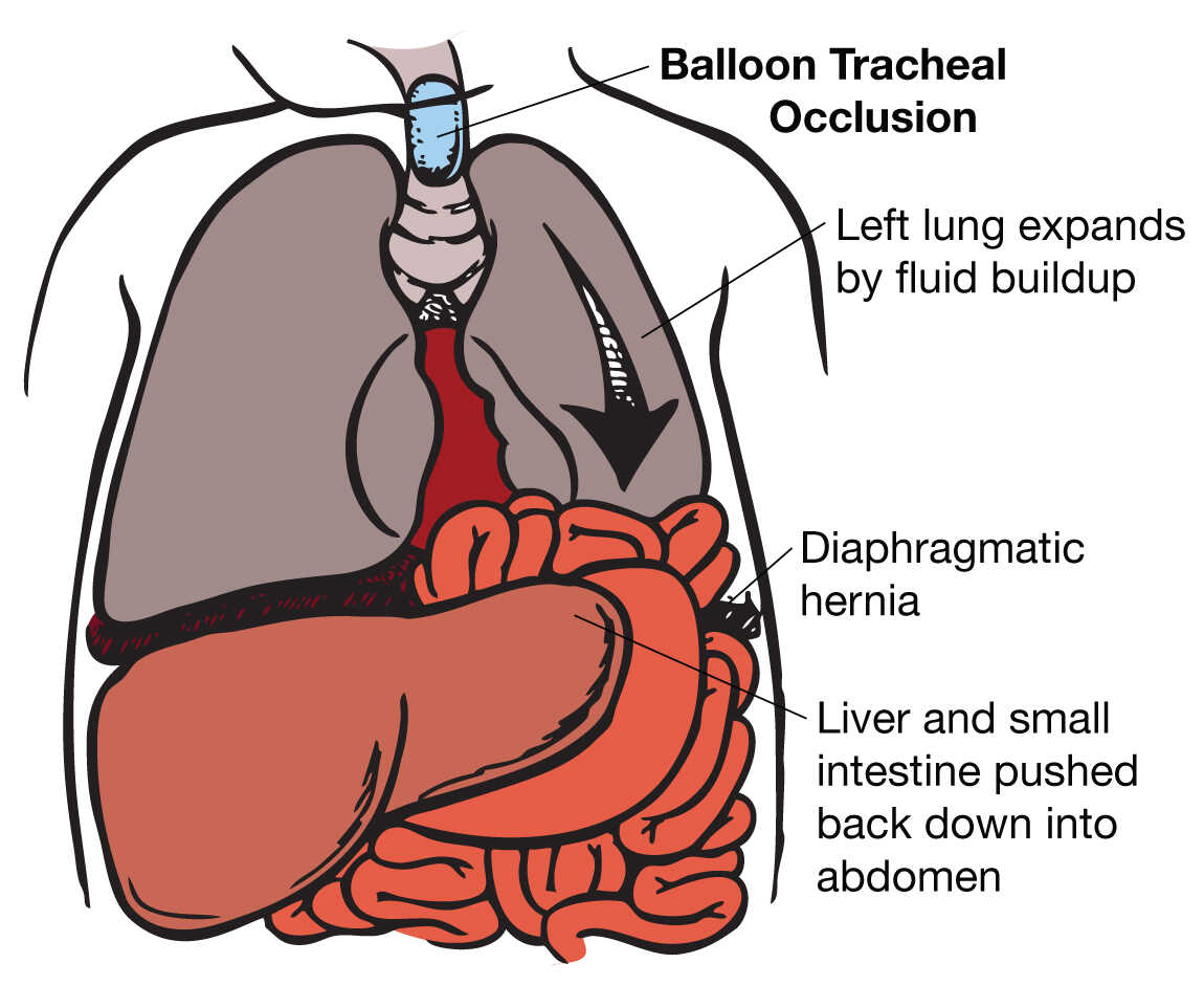 Illustration of CDH ballon tracheal occasion