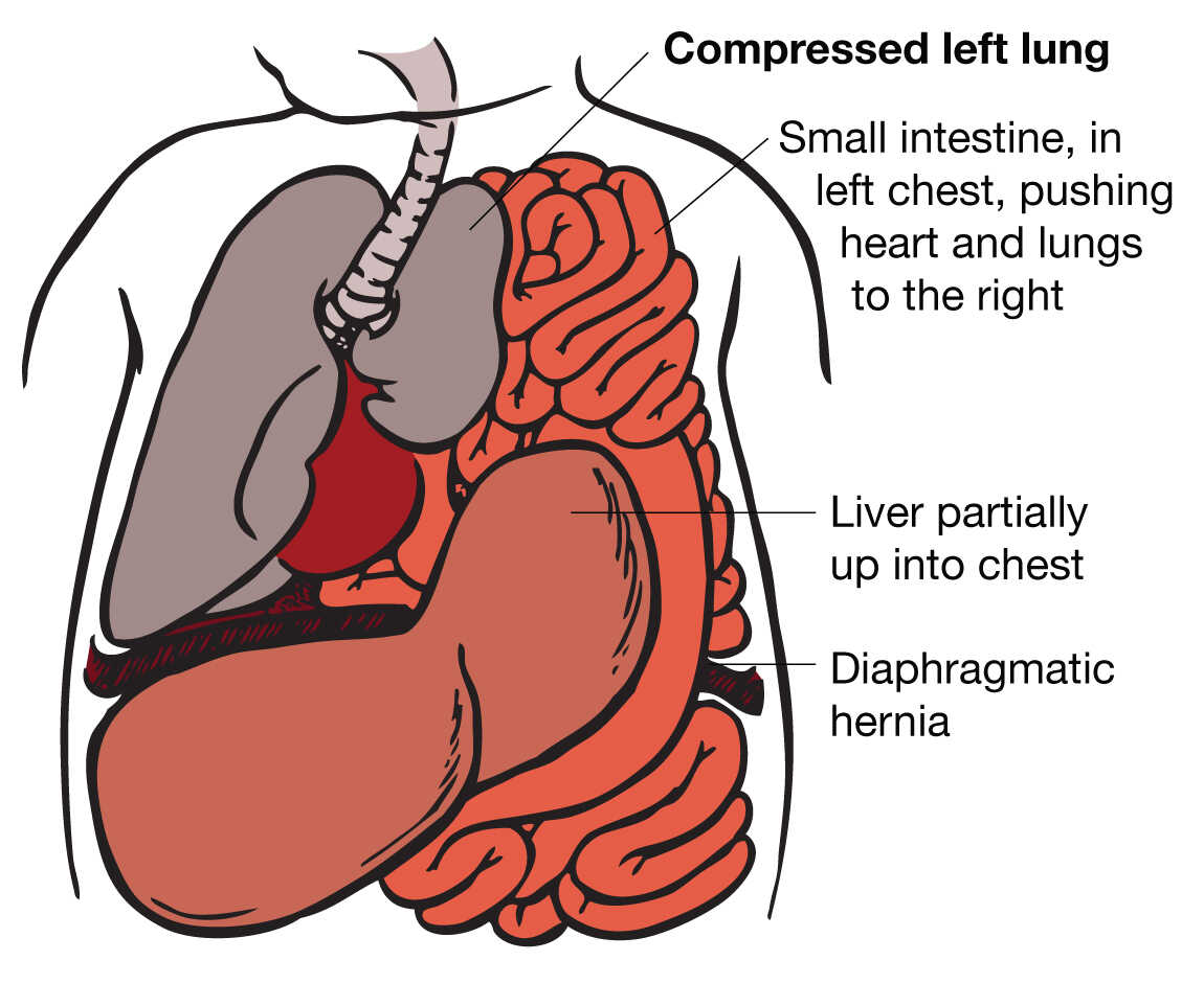 Congenital Diaphragmatic Hernia (CDH) | UCSF Fetal Treatment Center
