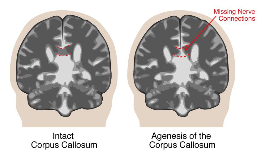 Agenesis of the Corpus Callosum | UCSF Fetal Treatment Center