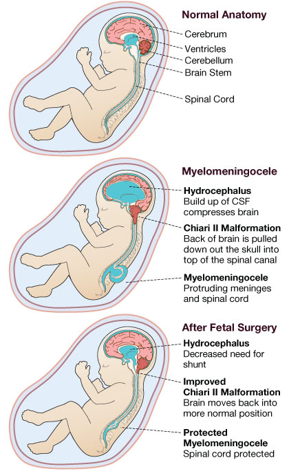 Anatomy illustration of Spina Bifida (Myelomeningocele) along with Chiari II malformation